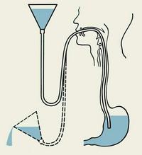 Промывание желудка Промывание желудка лаваж желудка